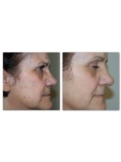 MicroSkinAbrasion, Mesoskin with oxygen and Medik8 cosmeceuticals - A.R.A Aesthetics Group