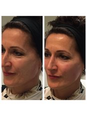 Cheek Augmentation  - Visify Aesthetics - The Vale