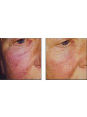 Facial Thread Veins Treatment - Visify Aesthetics - The Vale