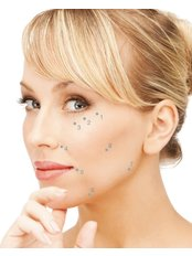 Dermal Fillers for Temple Contouring - Visify Aesthetics - The Vale