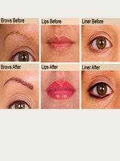 Redeem Semi permanent makeup clinic - Beau & Joli, 168 Kings Road, Harrogate, North Yorkshire, HG1 5JG,