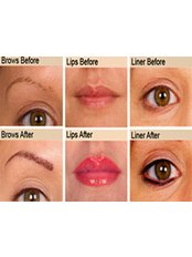 Redeem Semi permanent makeup clinic - Beau & Joli, 168 Kings Road, Harrogate, North Yorkshire, HG1 5JG,  0
