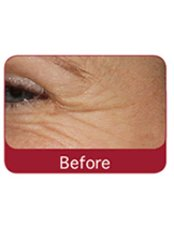 Treatment for Lines and Wrinkles - Mulberry House Clinic and Laser Centre