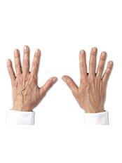 Hand Rejuvenation - Medical Cosmetics Ltd