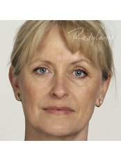 Treatment for Lines and Wrinkles - Medical Cosmetics Ltd