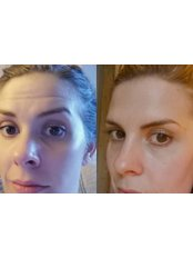 Treatment for Wrinkles - The Castle Clinic
