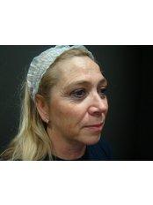Cheek Augmentation  - Dr. Gabriela Aguilar