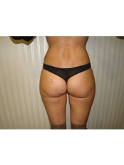 Fat Reduction Injections - Dr. Gabriela Aguilar