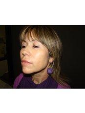 Radiesse™ / Radiance™ Filler - Dr. Gabriela Aguilar