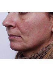 Mesotherapy - Dr. Gabriela Aguilar