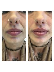 Dermal Fillers - Fusion Skin Clinic