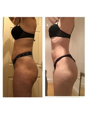 Fat Reduction Injections - Aqualyx - Fusion Skin Clinic