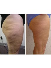 Cellulite Treatment - Swann Beauty