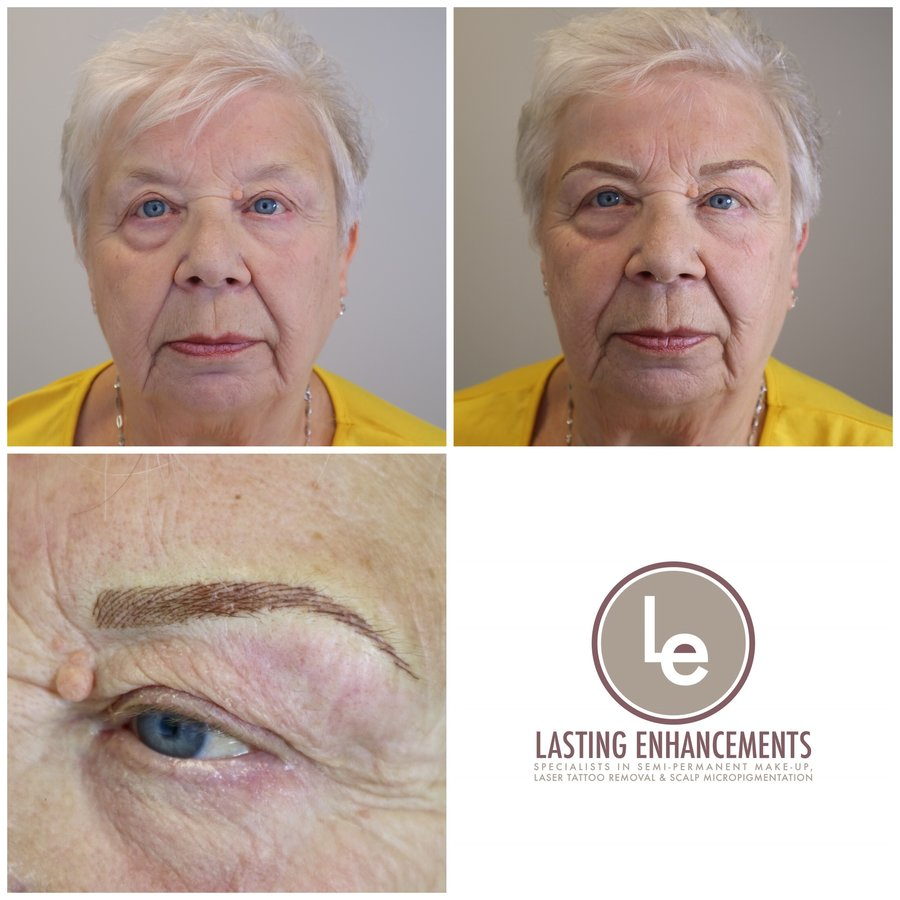 Lasting Enhancements Micropigmentation In Whickham