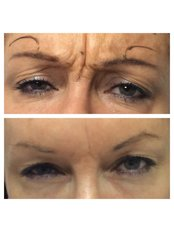 Treatment for Wrinkles - Helen Taylor Permanent Cosmetics