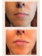 Dermal Fillers - Helen Taylor Permanent Cosmetics