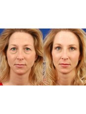 Non-Surgical Blepharoplasty  - The Clinic Room