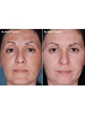 Pigmentation Treatment - Air Aesthetics Clinic