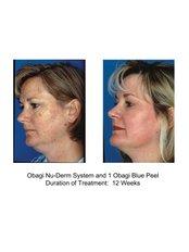 Deep Chemical Peel - Air Aesthetics Clinic