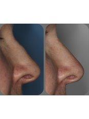 Non-Surgical Nose Job - Air Aesthetics Clinic