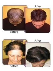 Laser Hair Loss Treatments - Beauty First Laser Skin Clinic