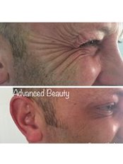 Advanced Beauty - Anti-wrinkle injections