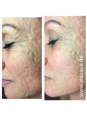 Acne Scars Treatment TIXEL - Skinqure Leeds Clinic