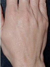 Hand Rejuvenation - Skinqure Leeds Clinic