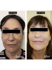 Silhouette Soft Lift - Skin Radiance clinics by Dr. Raj Thethi
