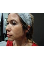 Radiesse™ / Radiance™ Filler - Dr. Gabriela Aguilar - Leeds