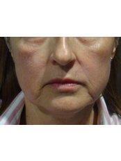 Dermal Fillers - Dr. Gabriela Aguilar - Leeds