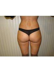 Fat Reduction Injections - Dr. Gabriela Aguilar - Leeds