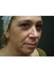 Cheek Augmentation  - Dr. Gabriela Aguilar - Leeds