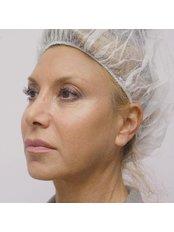 Silhouette Lift™ - Dr. Gabriela Aguilar - Leeds
