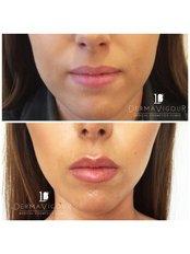 Lip Augmentation - Skin Radiance clinics by Dr. Raj Thethi