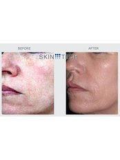 Medium Depth TCA Chemical Skin Peel - medical grade - Skin Radiance clinics by Dr. Raj Thethi