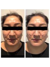 Thread Lift - Skin Radiance clinics by Dr. Raj Thethi