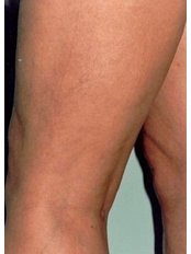 Sclerotherapy - The Retreat