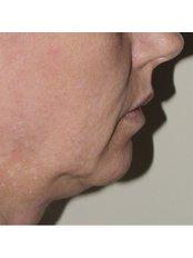 Skin Revitalisation - The Retreat