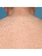 Laser Hair Removal - The Retreat