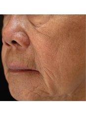 Laser Skin Resurfacing - The Retreat