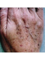 Age Spots Removal - The Retreat