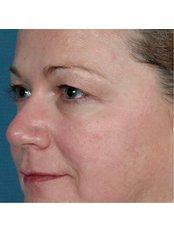 Radiofrequency Skin Tightening - The Retreat