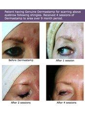 Dermaroller™ - Outline Skincare