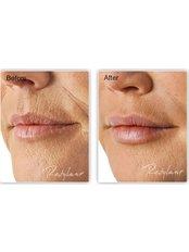 Lip Augmentation - Outline Skincare