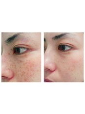 Age Spots Removal - Outline Skincare
