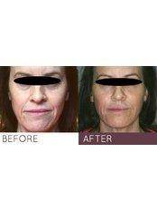 Dermal Fillers - Outline Skincare