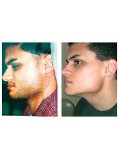 Laser Hair Removal - Outline Skincare