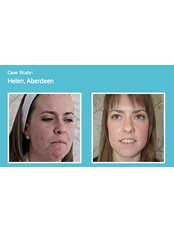Acne Treatment - Outline Skincare