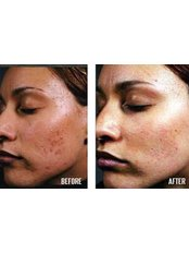 Acne Scar Treatment - Dr Kamil Alrustom Skin and Laser Centre